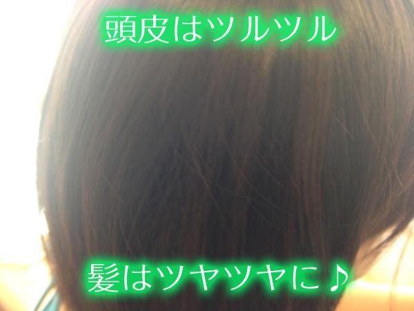 すこやか地肌で頭皮も髪も良くなった.jpg